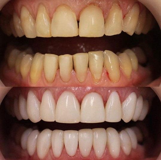 Реставрационное осветление зубов в клинке Лечим зубы Москва