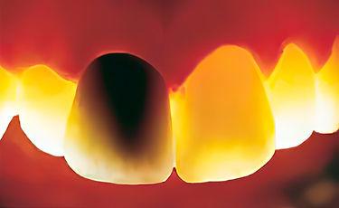 Стоматологическая коронка из металлокерамики