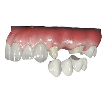 Протезирование в стоматологи Лечим зубы Москва