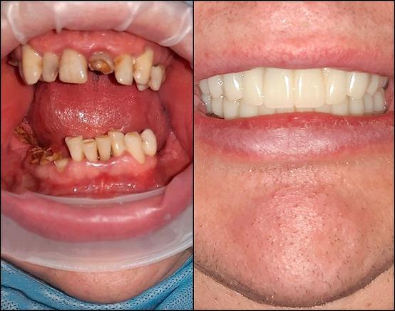 Пример работы по тотальному протезированию всех зубов (система All-On-6) в стоматологической клинике Лечим зубы Москва