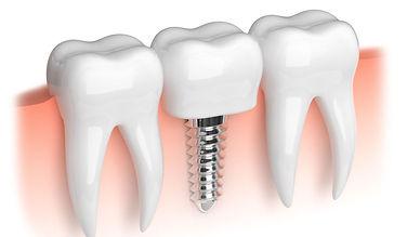 Зубная имплантация в стоматологии Лечим зубы Москва