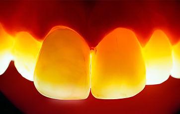 Стоматологическая коронка из диоксида циркония (ZrO2)