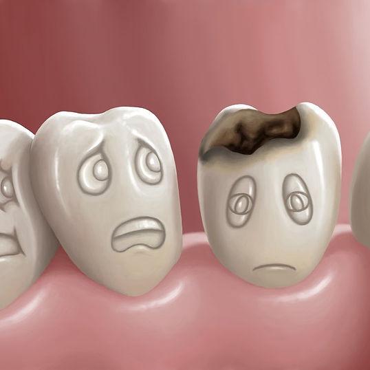 Как спасти зуб Москва