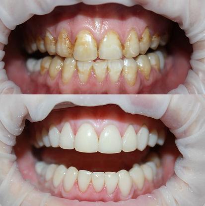 Пример работы по реставрационному осветленю зубов пациенту с флюорозом в клинике Лечим зубы Москва