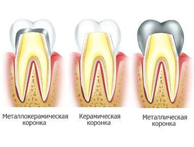 Виды стоматологических коронок