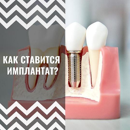 Как ставится стоматологический имплантат