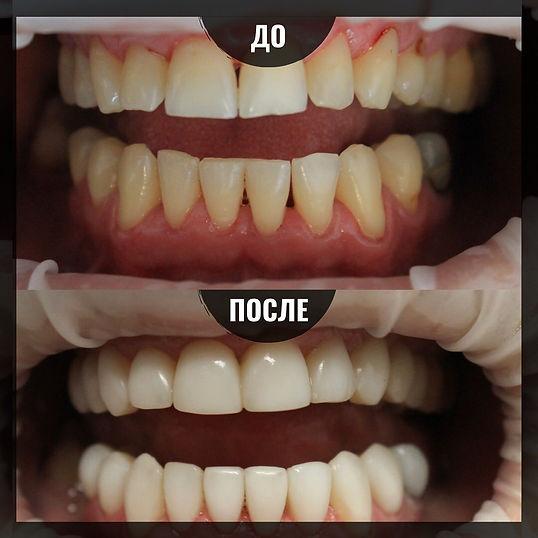 создание идеальной улыбки в стоматологии Лечим зубы Москва