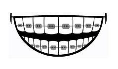 Ортодонтия в клинике Лечим зубы Москва