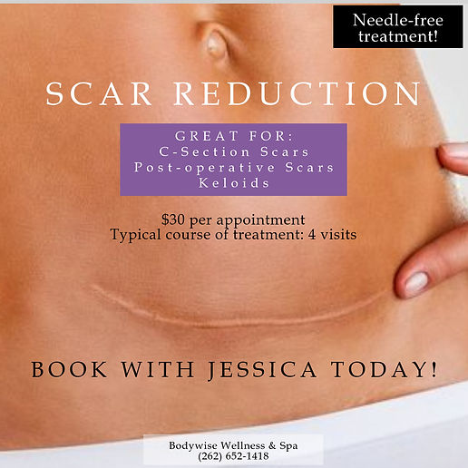Scar Reduction Promo Poster.jpg