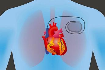 pacemaker on heart1.jpg