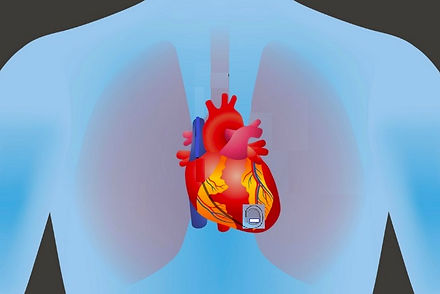 pacemaker on heart3.jpg