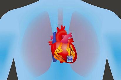 pacemaker on heart2.jpg