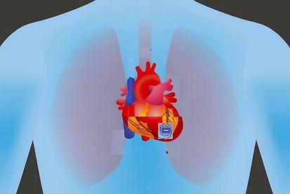 pacemaker on heart4.jpg