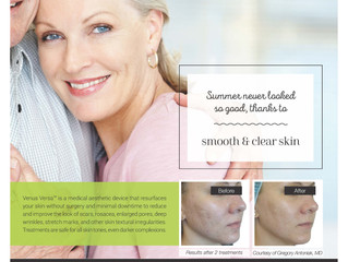 Smooth and clear skin this summer with the Viva Treatment