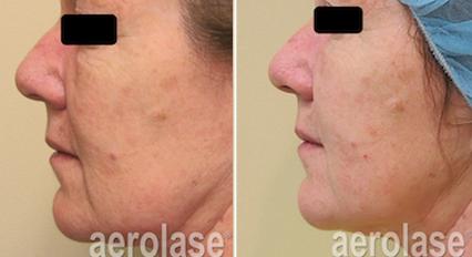 Skin Rejuvenation5 - Pair