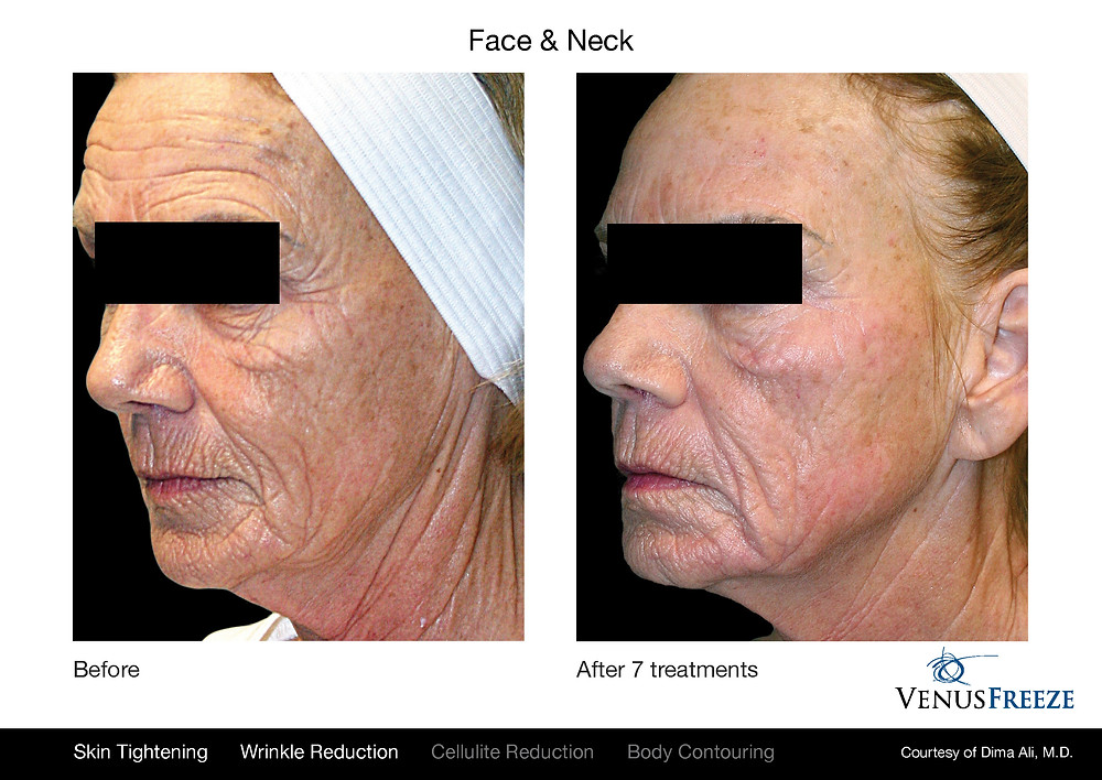 VenusFreeze treatment that helps the skin look younger by tightening.