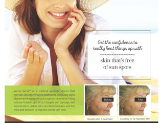 Be free of sun spots with Venus Versa IPL