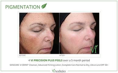 VI Peel Pigmentation_4.jpg