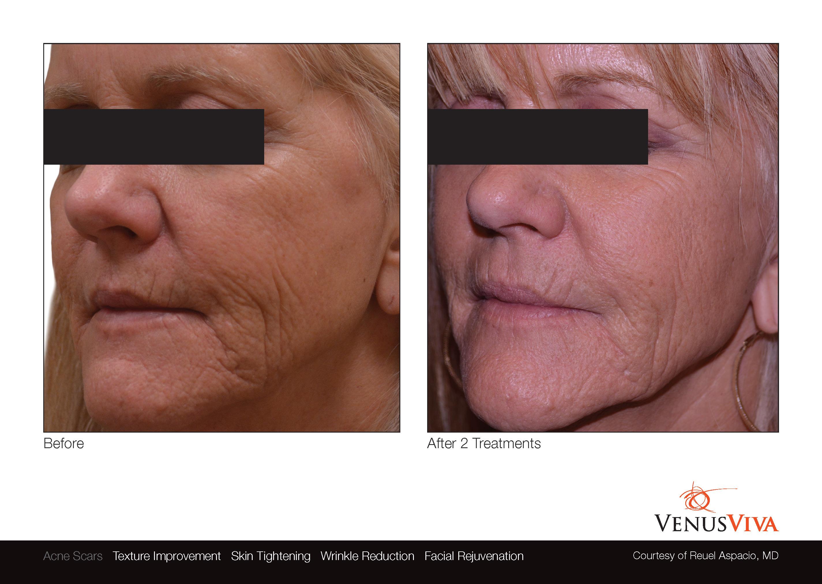 venus_viva_anti_aging
