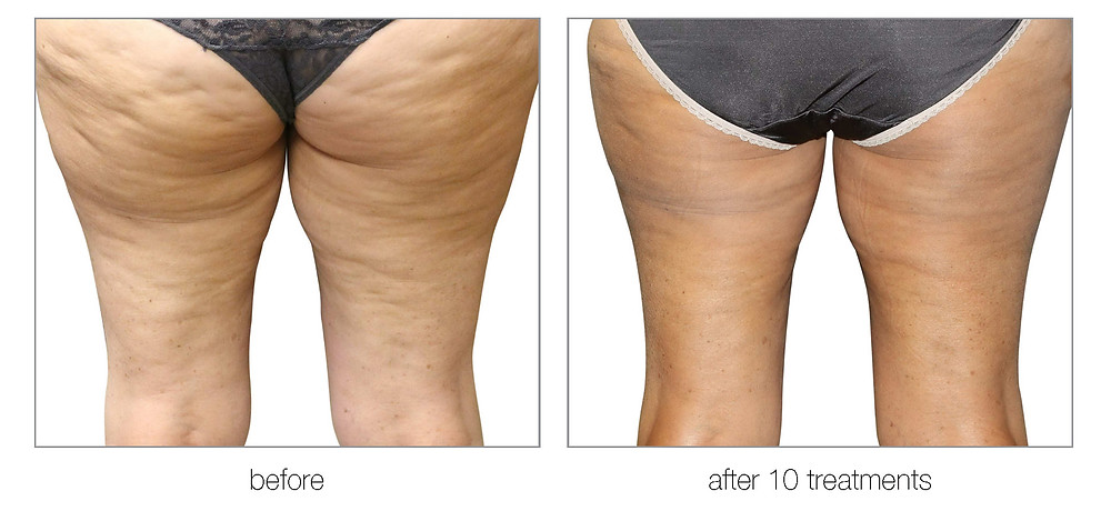 cellulite reduction in dallas and southlake