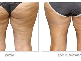 Everything you need to know about cellulite reduction!