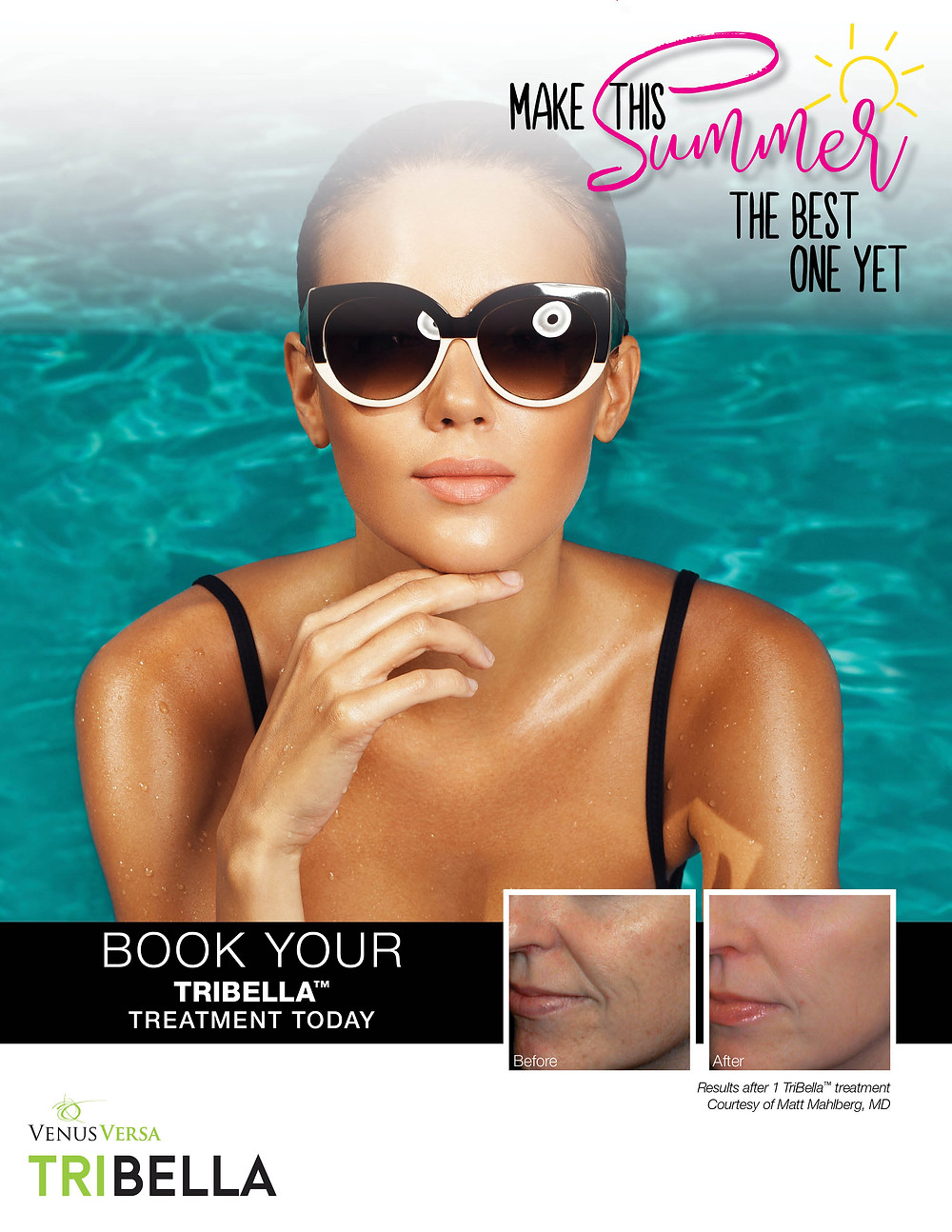 flawless skin laser treatments
