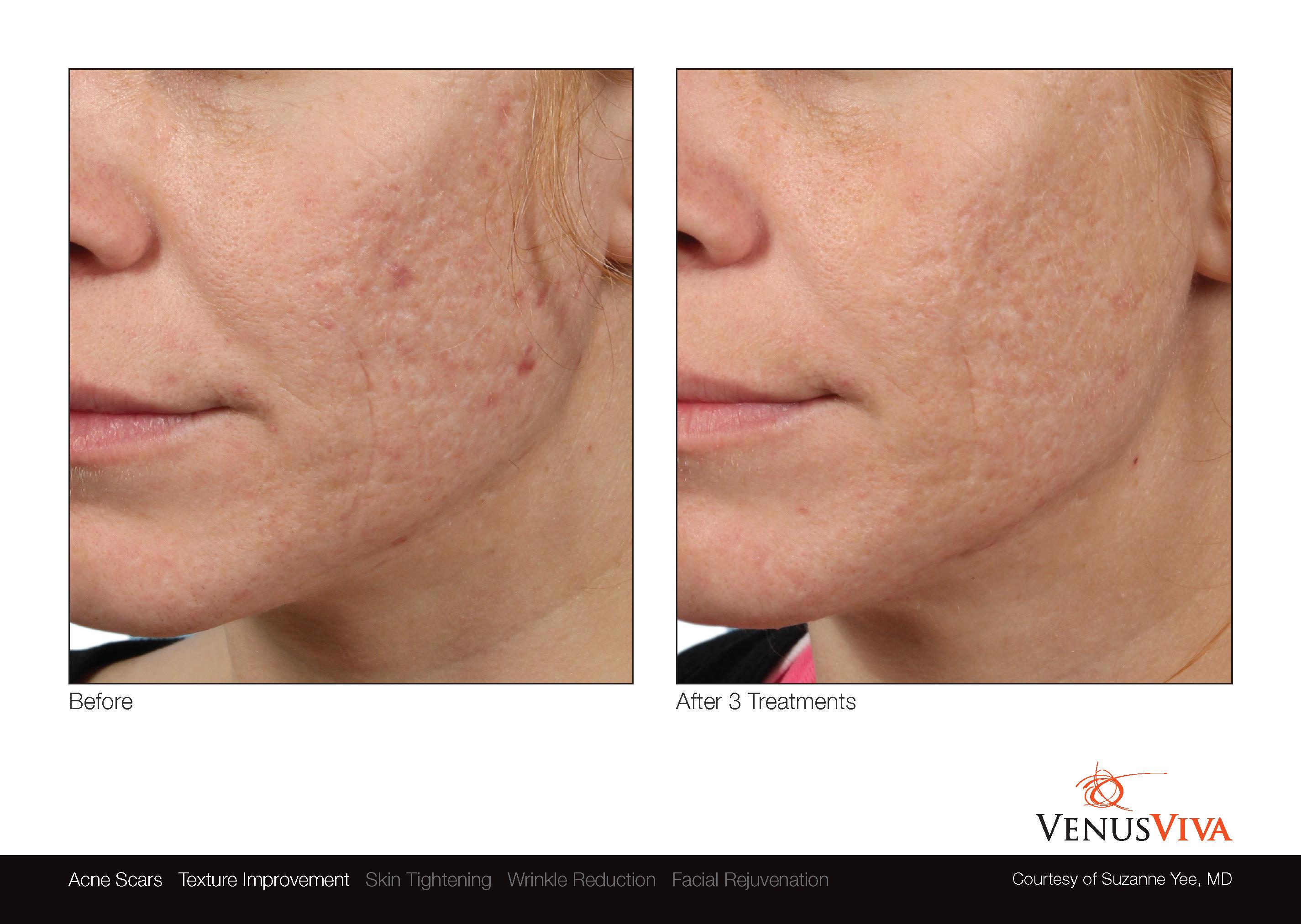 VenusViva_skin resurfacing_acne scars