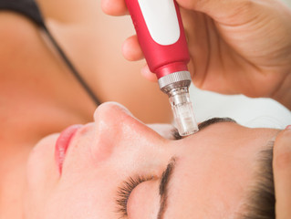 Collagen Induction Treatment: Micro-Needling