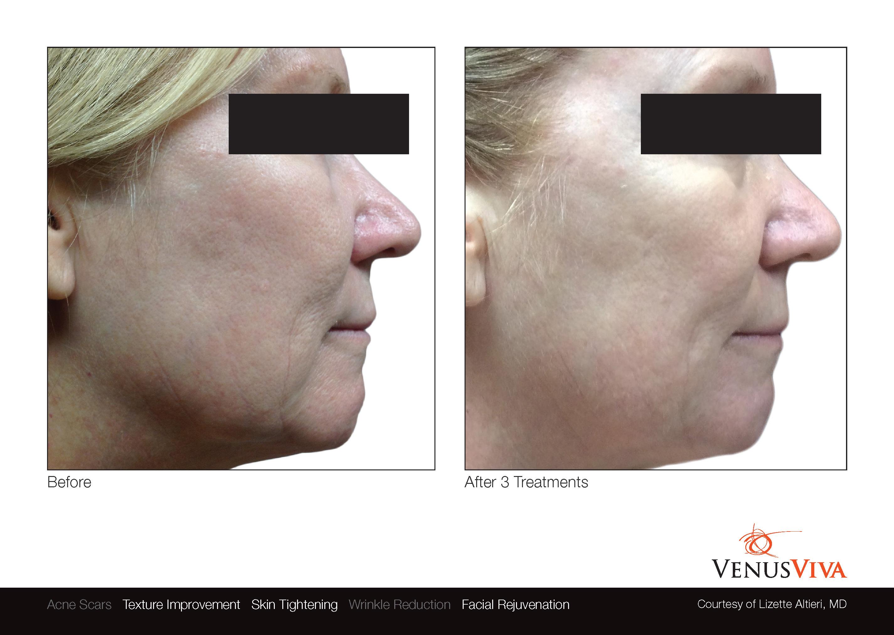 VenusViva_skin resurfacing in north dallas