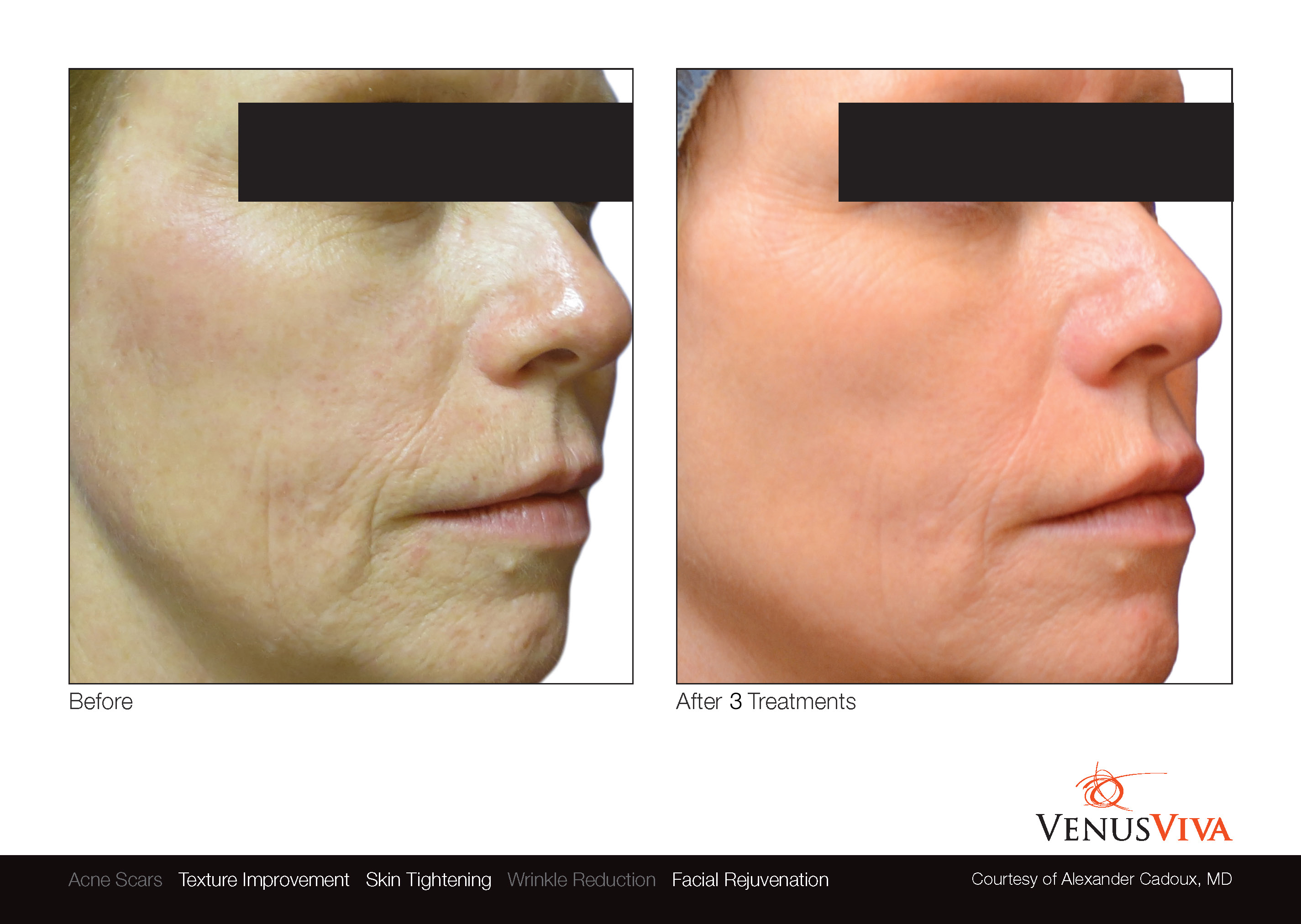 venus_viva_resurfacing