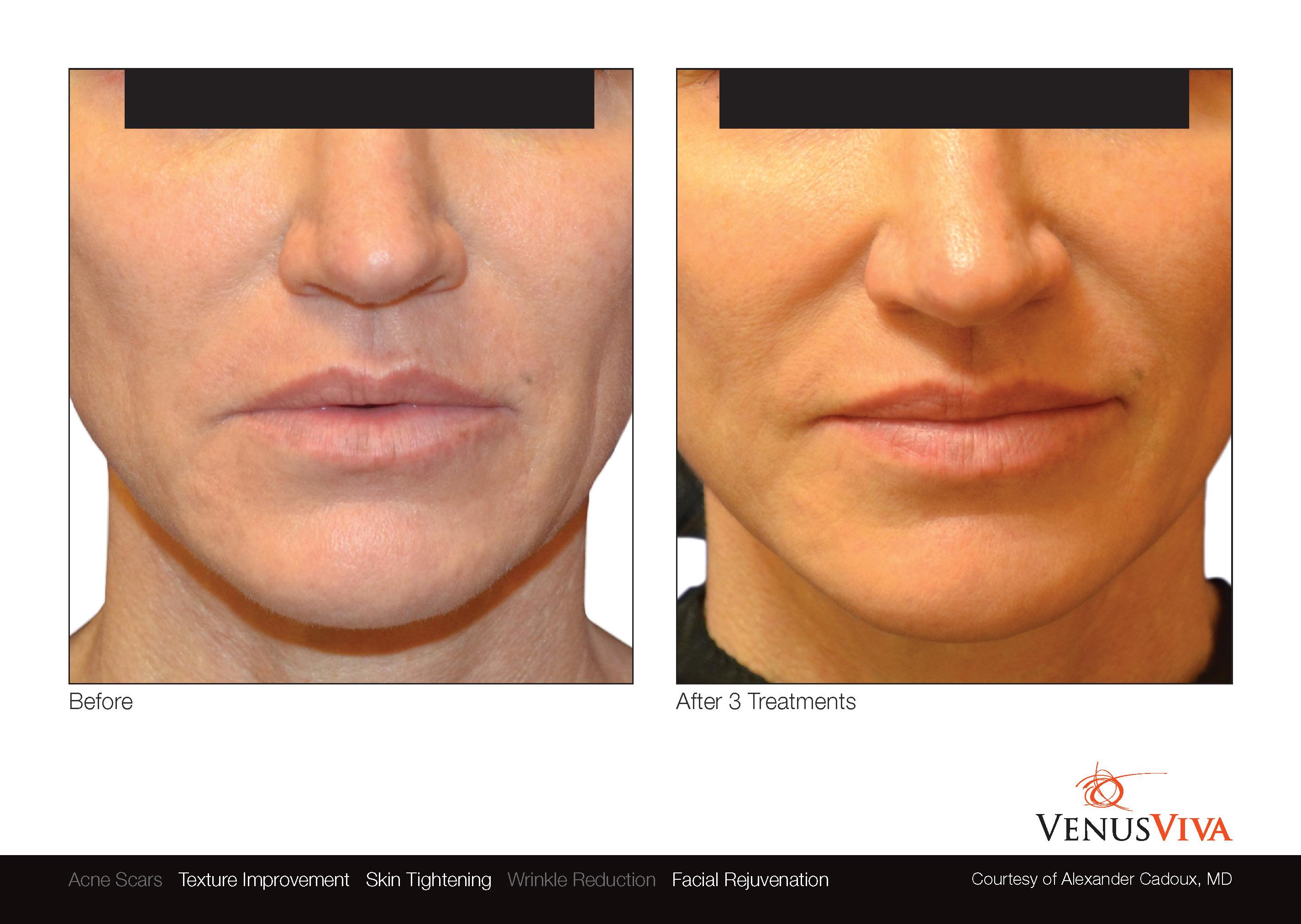 VenusViva_skin resurfacing dallas