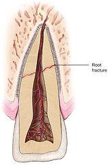 Root-Fracture.jpg