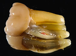 Cracked or fractured molar crowned tooth