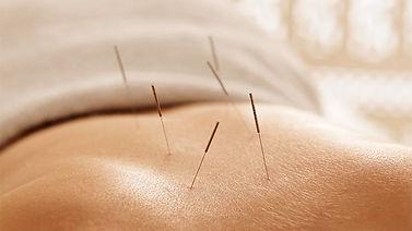 accupuncture.jpg