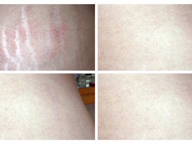 COSMED-TTOO Stretch marks Microneedling therapy w/ stem cell