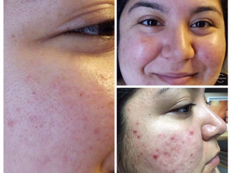 COSMED-TTOO Microneedling Active Acne