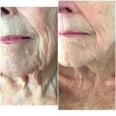COSMED-TTOO Microneedling deep wrinkles