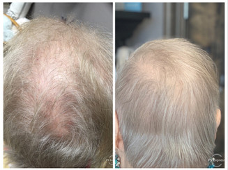 COSMED-TTOO HRS Hair regrowth micro channeling stem cell