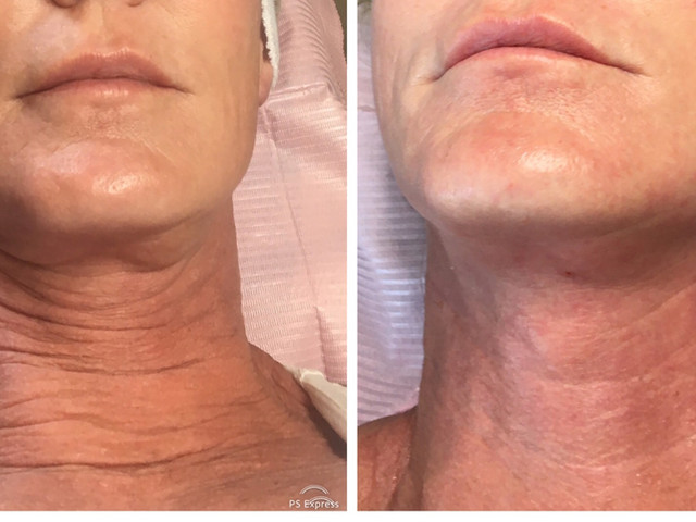 COSMED-TTOO Microneedling Neck stem cell therapy