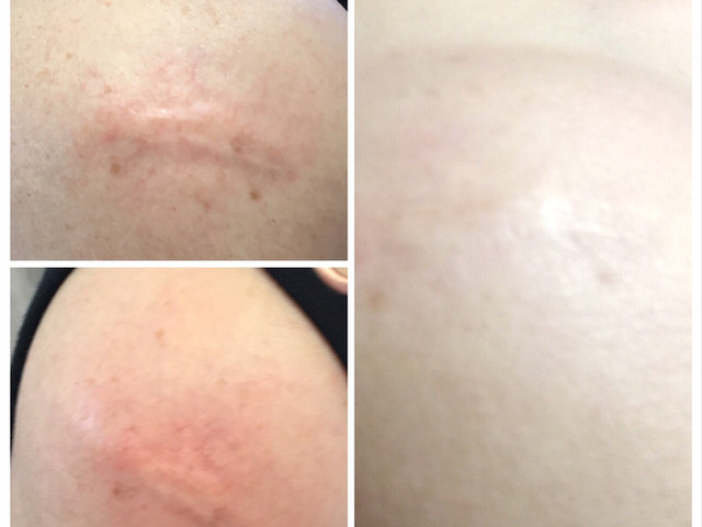 COSMED-TTOO Scar Camouflage w/Microneedling