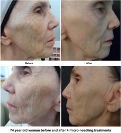 Microneedling deep wrinkles