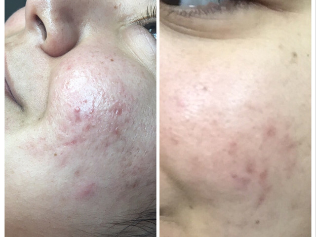 COSMED-TTOO Microneedling treatment for Active Acne