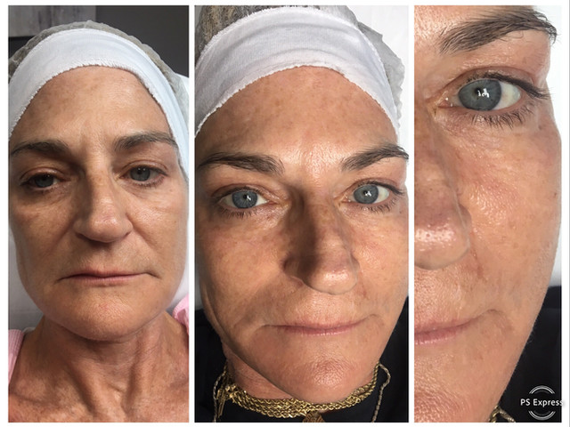 COSMED-TTOO B&A 1st. rejuvenation microneedling w/ stem cell