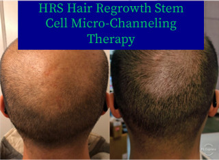 COSMED-TTOO HRS Hair regrowth stem cell