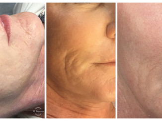 COSMED-TTOO Microneedling rejuvenation stem cell therapy