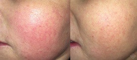 COSMED-TTOO Rosacea Microneedling Therapy