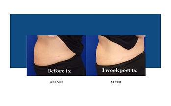 lipocel-before-afters-2-800x500.jpg