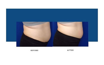 lipocel-before-afters-3-800x500.jpg