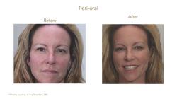 Before & After_Dr Ava Shamban