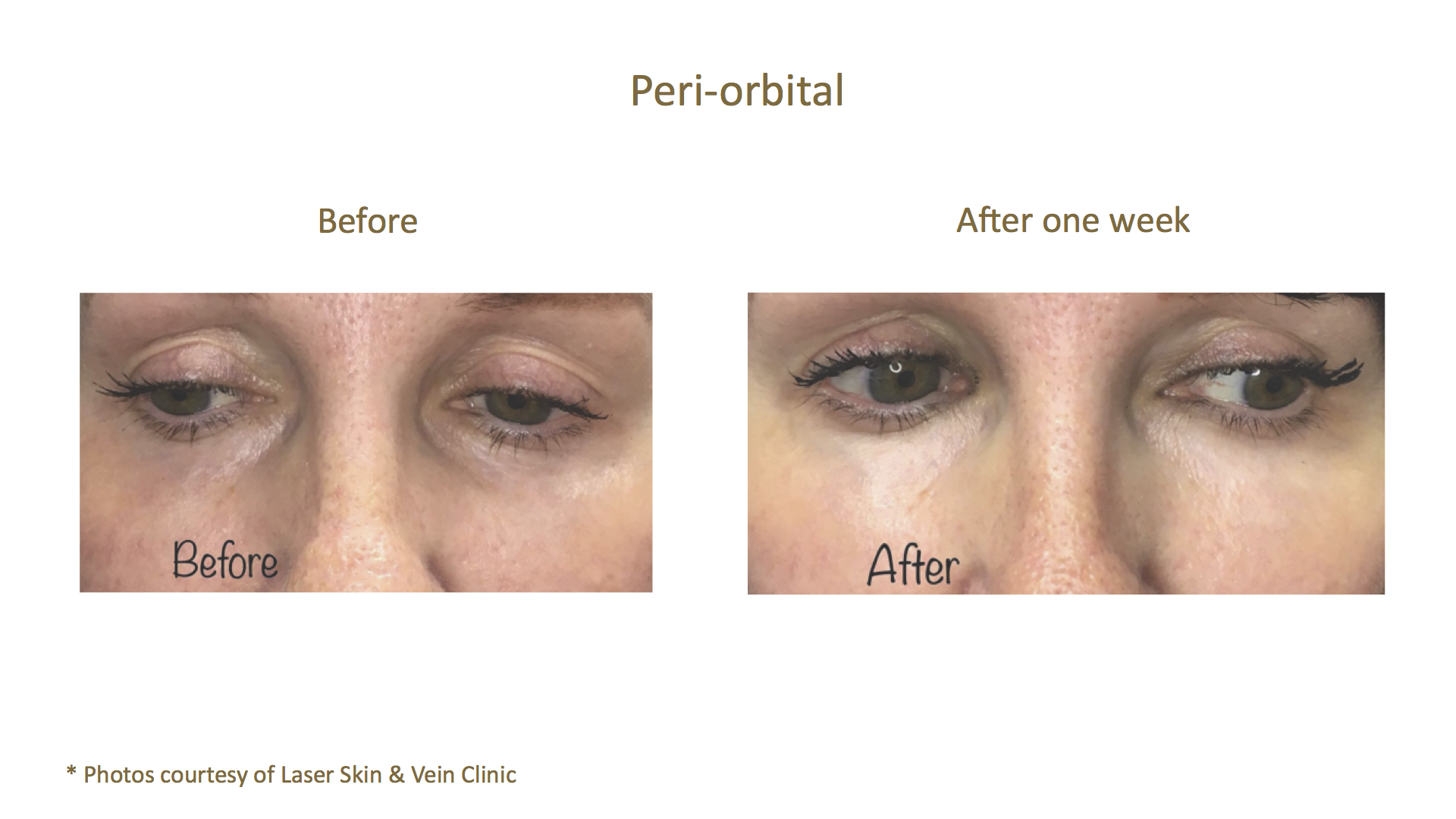 Before & After_Laser Skin and Vein Clini